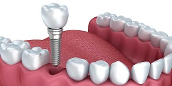 Why Dental Implants Make Good Sense Today