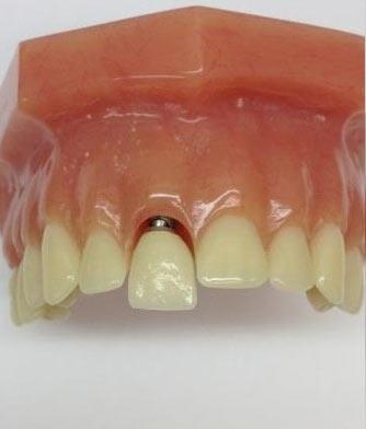 dental-impant-3