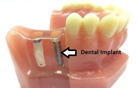dental-implant-2