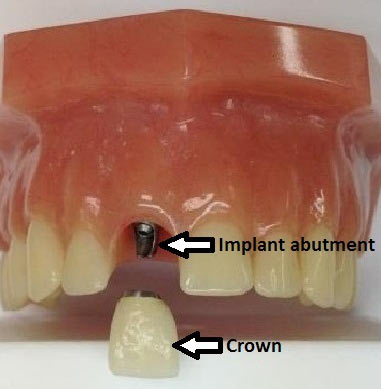 implant-abutment-crown
