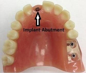 implant-abutment