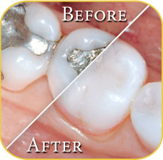 Composite Filling Vs Amalgam