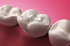 Understanding Composite Fillings