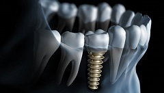 Learn More About Dental Implant Surgery