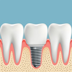The Price of Dental Implants Can Vary Widely